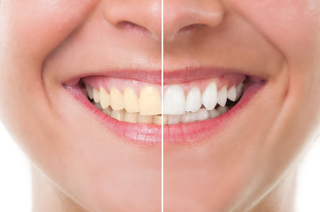 Are you Going to the Dentist for a Teeth Cleaning? Pro Advise